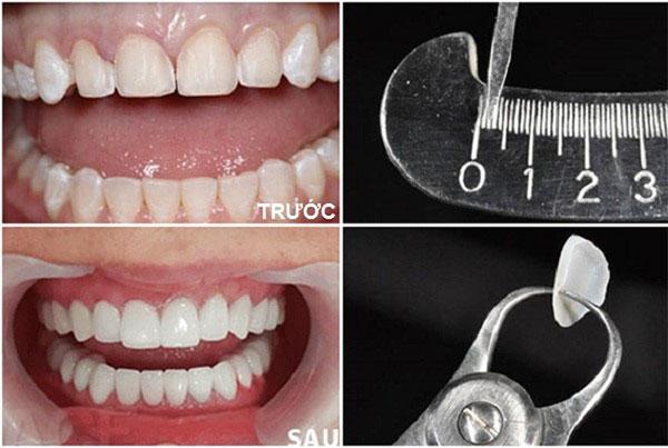 5 ngộ nhận hài hước về bọc răng sứ nhiều người mắc phải