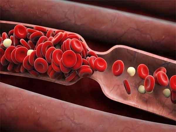 """Cách làm """"sạch"""" và """"trẻ hóa"""" mạch máu đơn giản và hiệu quả"""